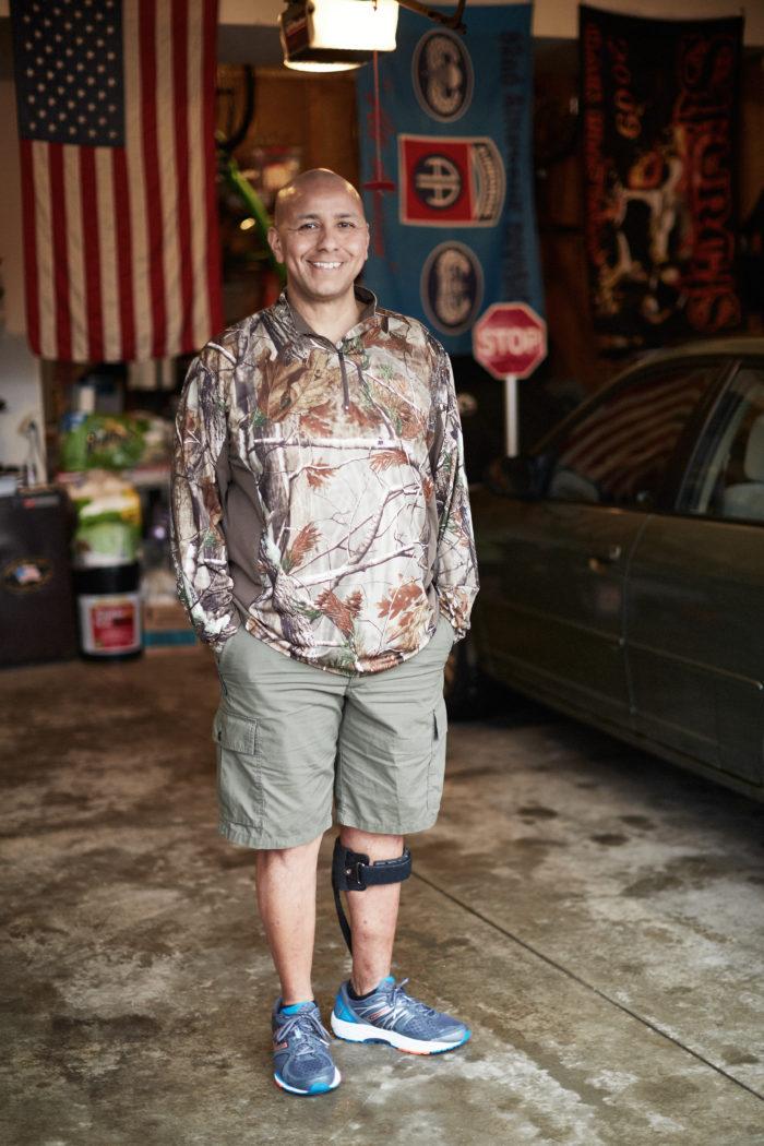 Smiling man with leg brace standing